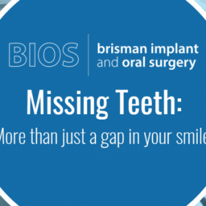 Missing teeth implants