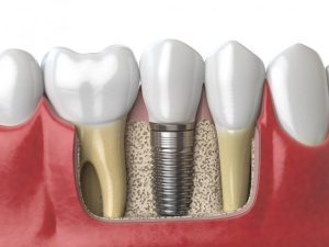 Dental Implants NYC BIOS