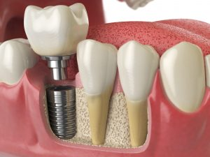 Dental implants diagram