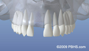 Dental Implants treatment NY