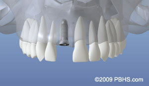 Dental Implants Dentist NY