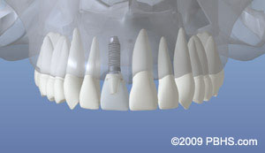 Dental Implants by BIOS