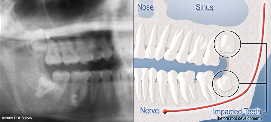 diagramof x ray and impacted wisdom teeth 1