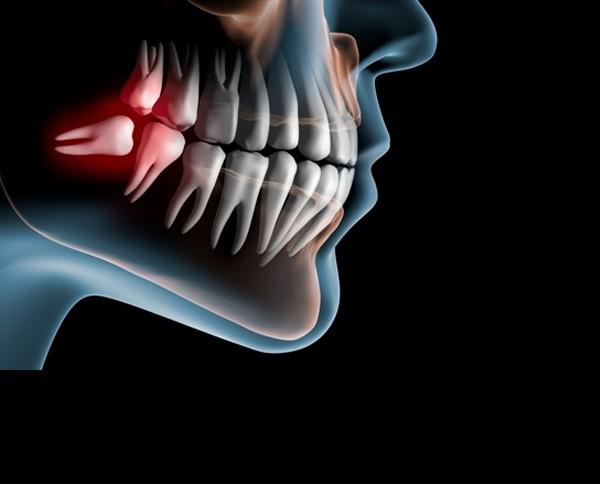 Dental services NY