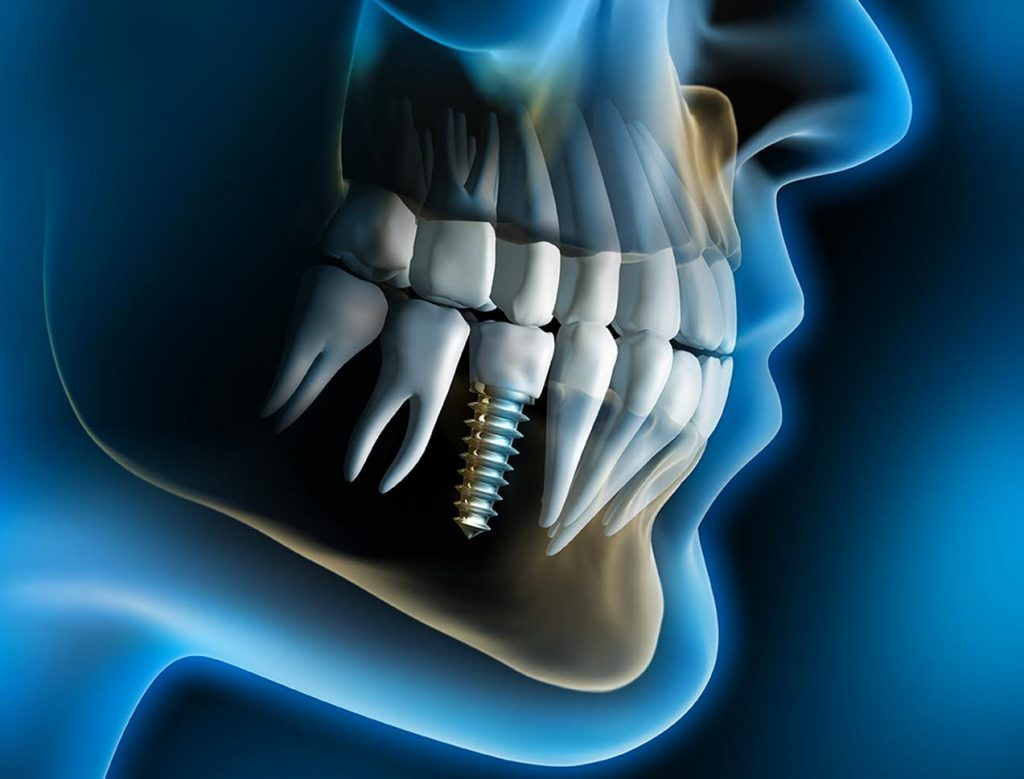 Dental implants treatment
